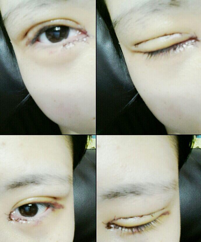 切开双眼皮+开外眼角案例,大韩民国的医院就是好了!!