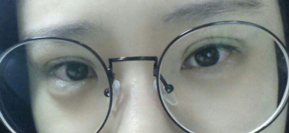 眼综合手术案例,眼睛的轮廓现在可以看出来了