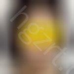 脸部轮廓整形案例,现在的脸变得非常精致。