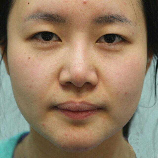 眼综合和鼻综合,还有面部轮廓案例,感谢她让我变得美丽。