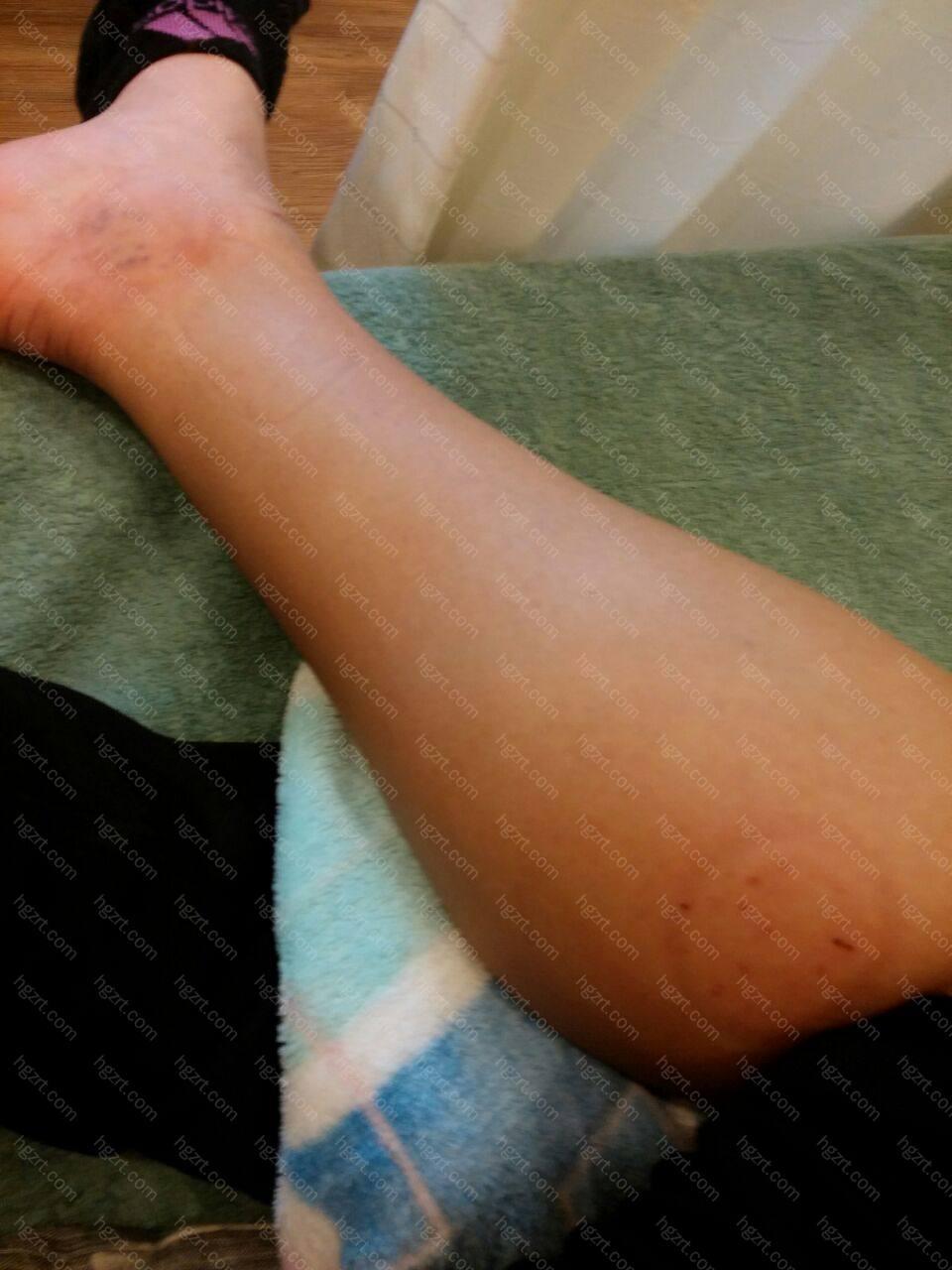 做了小腿去肌肉手术