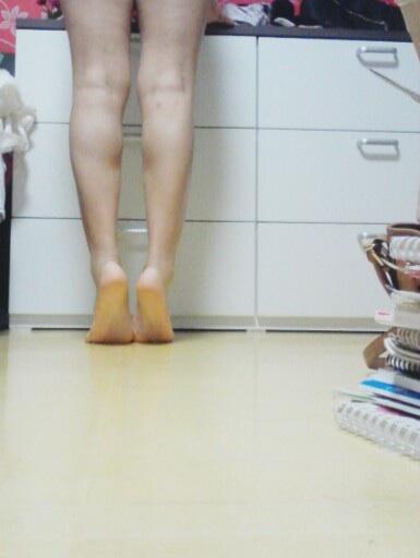 腿部抽脂整形哪里,怎么瘦腿?