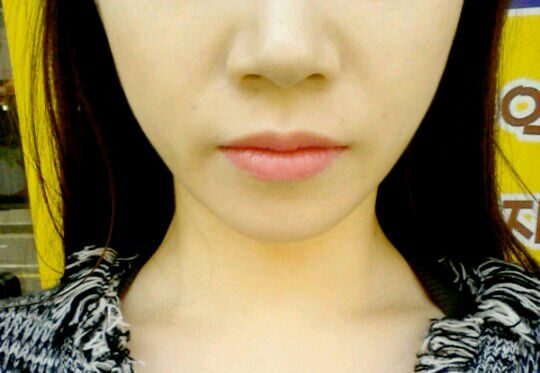 鼻综合手术案例,换个角度看鼻子还是那么美。