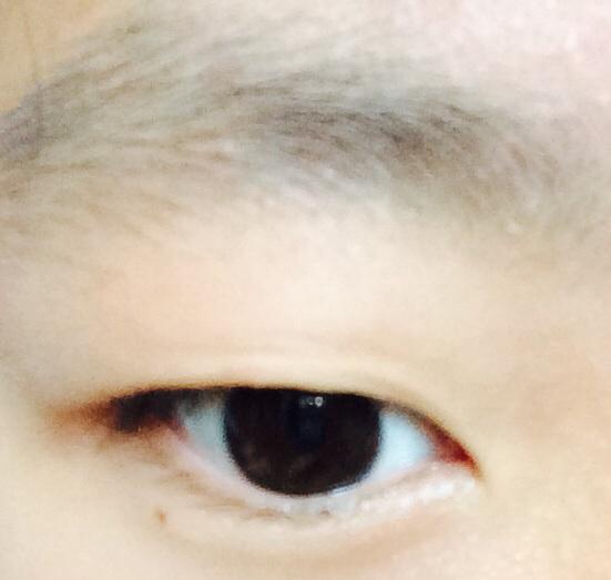 三点式埋线双眼皮手术案例,割的不是很宽,很满意。