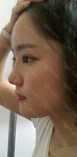下颌角和鼻综合