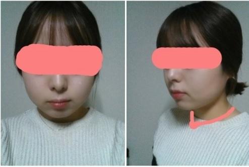 下颌角、酒窝手术两个月案例,真开心