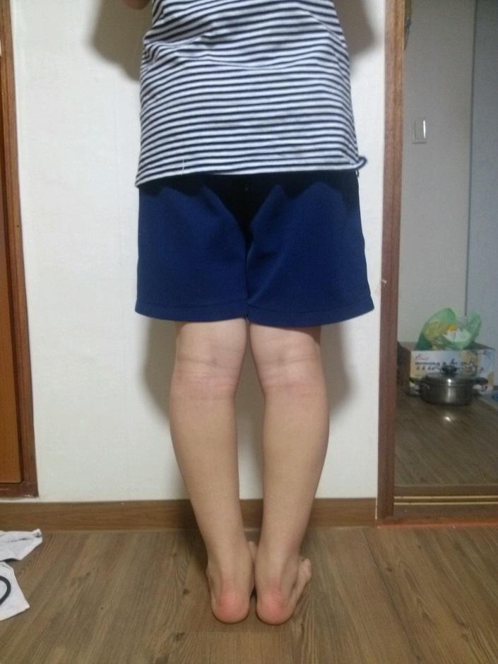 瘦小腿的整形手术