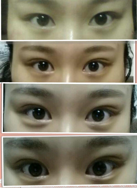 双眼皮手术价格表
