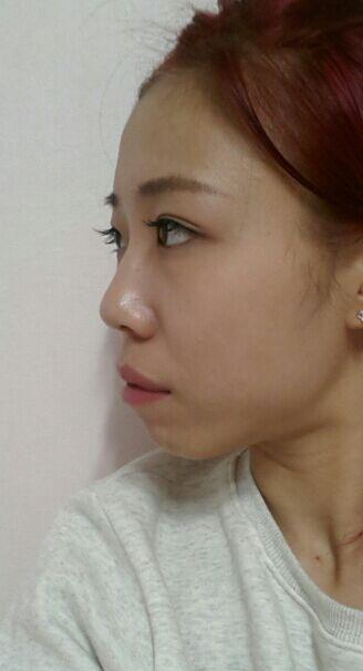 在韩国做的突嘴手术很成功,一个月后的照片