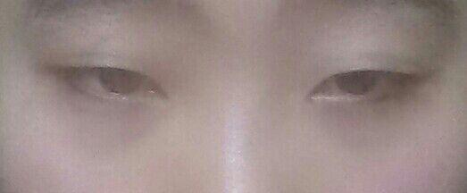 去做了双眼皮手术,因为眼皮薄所以选择做了埋线。