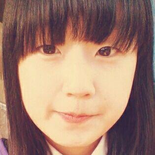 韩式双眼皮和全切区别,变美先变眼