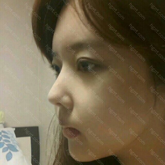 做了面部脂肪填充后的脸改善了之前凹陷的情况