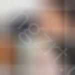 额头脂肪填充前后对比,刚开始做完脂肪填充后脸着实肿了很久