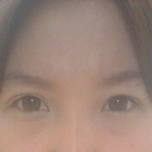 双眼皮修复案例,这样的眼睛才是成功的。