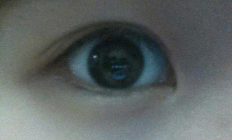 切开双眼皮案例,现在的眼睛感觉大了很多。