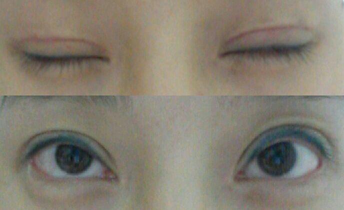 宁愿割得窄点,重新修复双眼皮整形案例