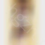 耳软骨隆鼻1、2天案例,期待后面消肿。