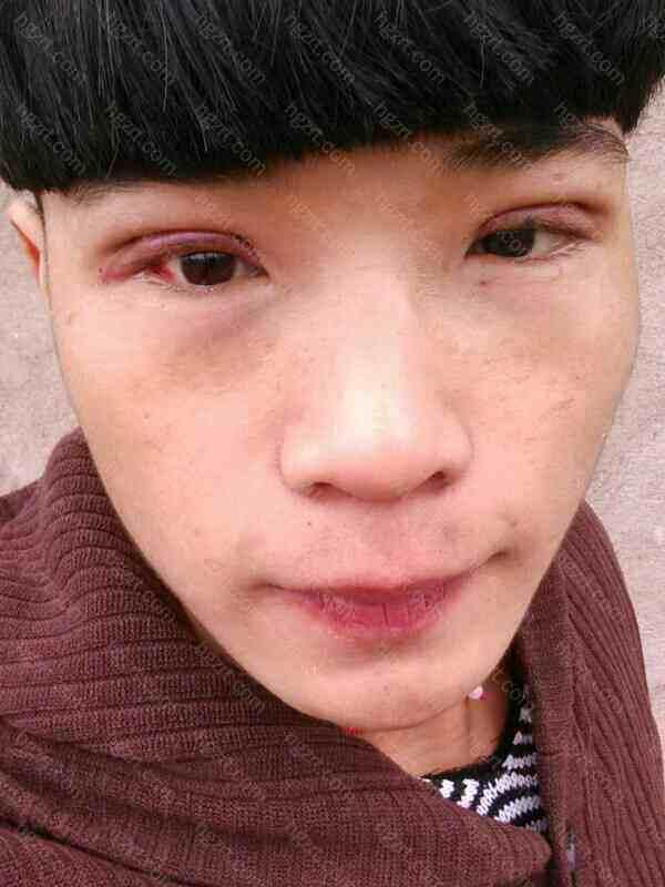 整个眼睛都肿了没输液