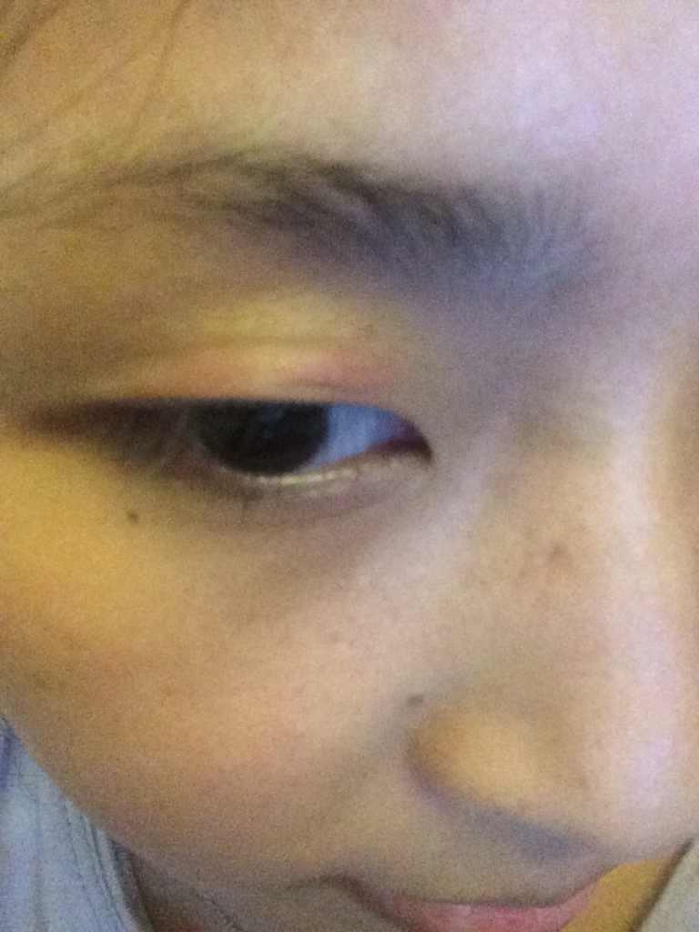切开双眼皮效果是长期的吗?