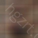 埋线双眼皮做后第二天案例,要怎样快速痊愈呢?