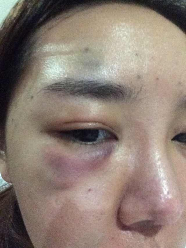 眼综合+鼻综合+面部轮廓手术案例,千刀万剐成个女神。