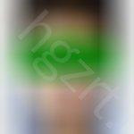 Vline手术  鼻子 脂肪填充 案例 效果不太明显?
