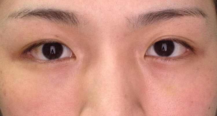 玻尿酸填充泪沟案例,还有点淤青。