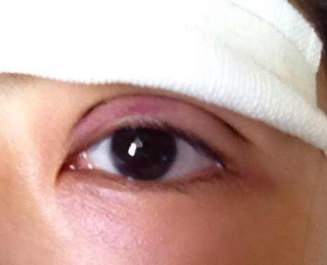 韩式三点定位翘睫双眼皮案例,10月10号还有希望恢复自然点吗。