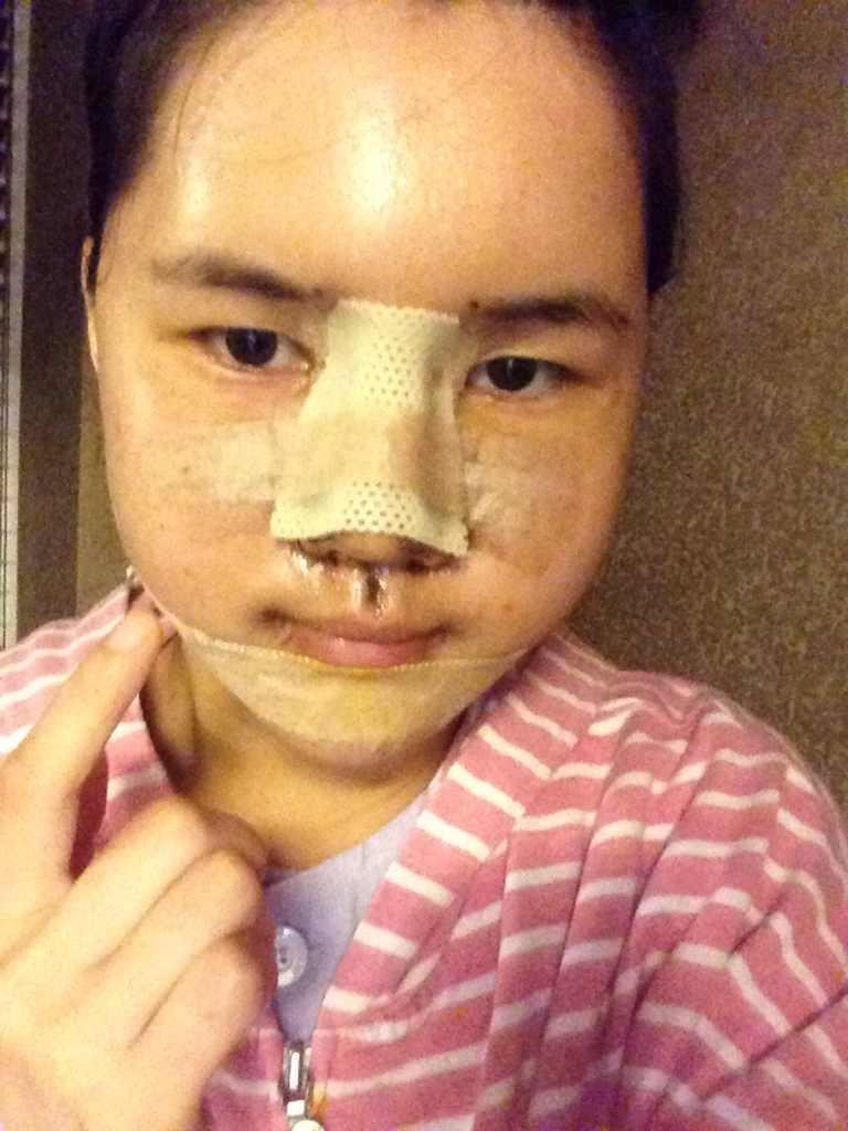 鼻子,颧骨,下巴、脂肪。下额角。这是本小姐第4天的案例照片