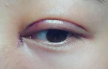 割双眼皮,开眼角第四天案例,一切安好,还好听医生话了。