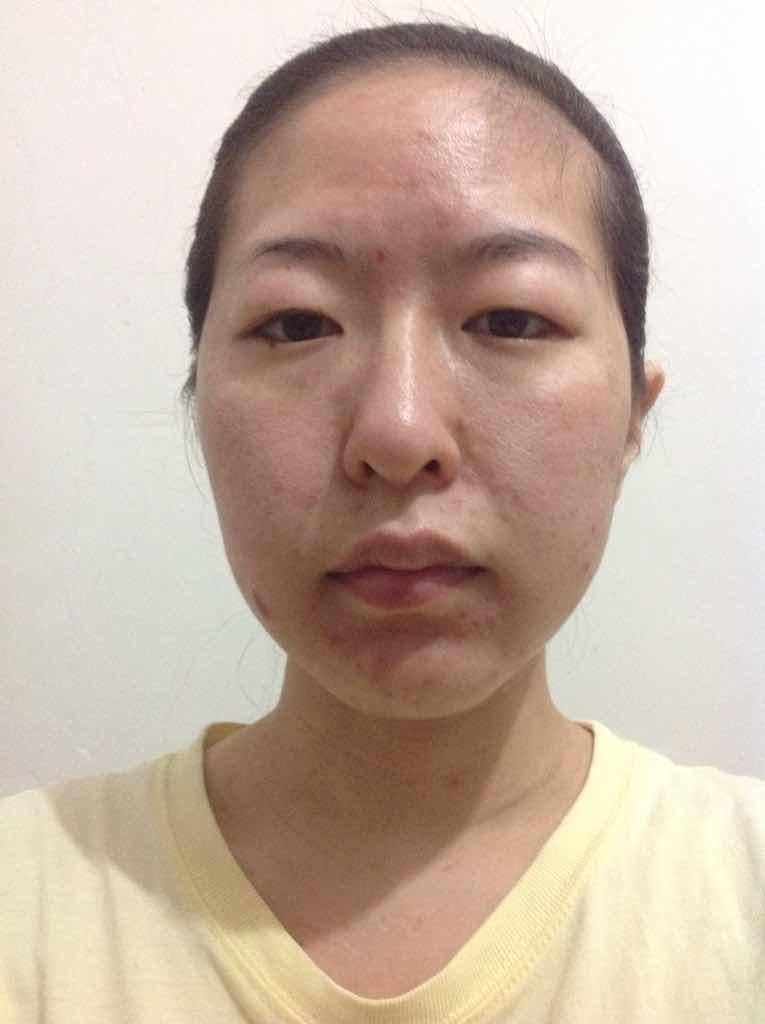 """面部轮廓整形手术的""""度""""与""""量""""是怎么回事?如果改变成下面脸型要做什么部位?只是脸型。"""
