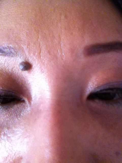 玻尿酸的除皱效果能保持多久,眉头上的这个皱纹叫什么皱纹,用玻尿酸的话不知道效果怎么样。