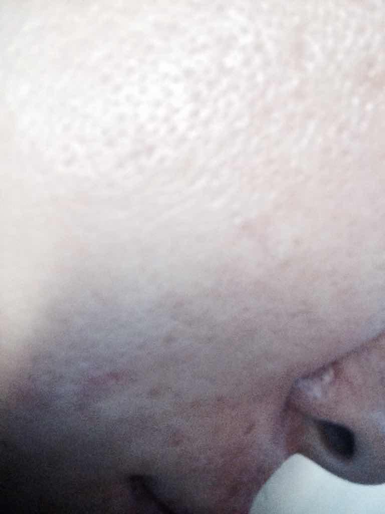 激光去痘印会有副作用吗?能不能同时解决毛孔的问题,皮肤看起来真的很糟糕。