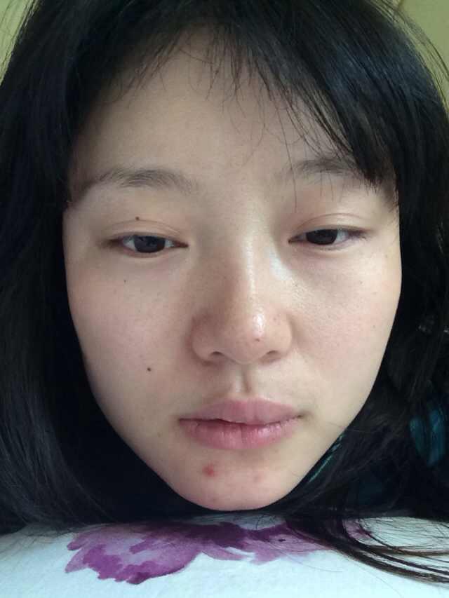 全切双眼皮多久修复?这嘴巴是怎么了?还有救吗,就想问问这个。。。。