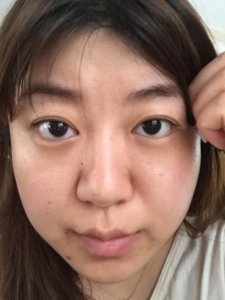 什么是宽鼻缩窄术呢?别人都说我长得很像大吗。。。真的有这么差劲吗,这也忒伤人自尊心了!