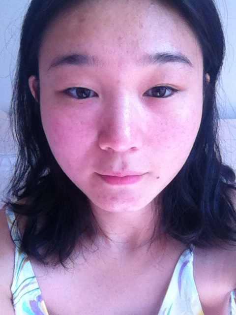 全切双眼皮切开怎么预防疤痕增生?我这样的眼睛是不是做不了埋线,主要还是担心失败这个事情!