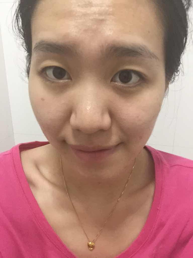有抬头纹怎么办 做电波拉皮能消除抬头纹吗?怎么老的这么快,现在不化妆根本没法见人,烦的很。