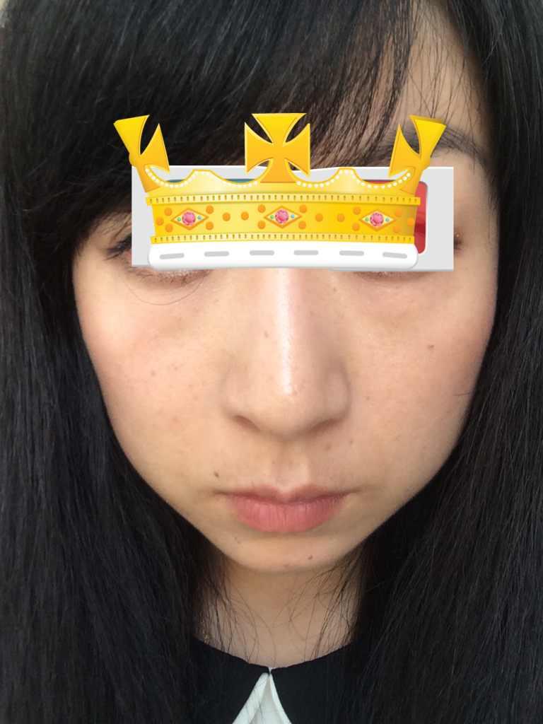 激光去眼袋的效果好不好?脸上的线条也不行,我还很年轻啊可是看起来真的好老。