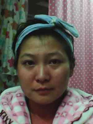 假体隆鼻手术需要多久恢复?怎么变美,怎么弄好看,希望给与指点