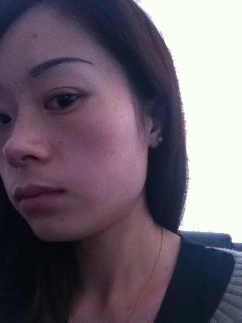 做改脸型手术会有风险吗?对脸型特别不满意,看看还有哪些地方需要整的吗?