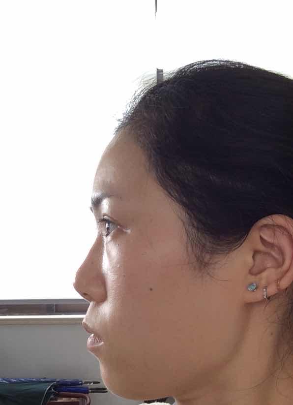咬肌切除瘦脸术安全吗?开过双眼皮和内眼角,咬肌注射过botox ,不知道咬肌肥大有什么一劳永逸的办法