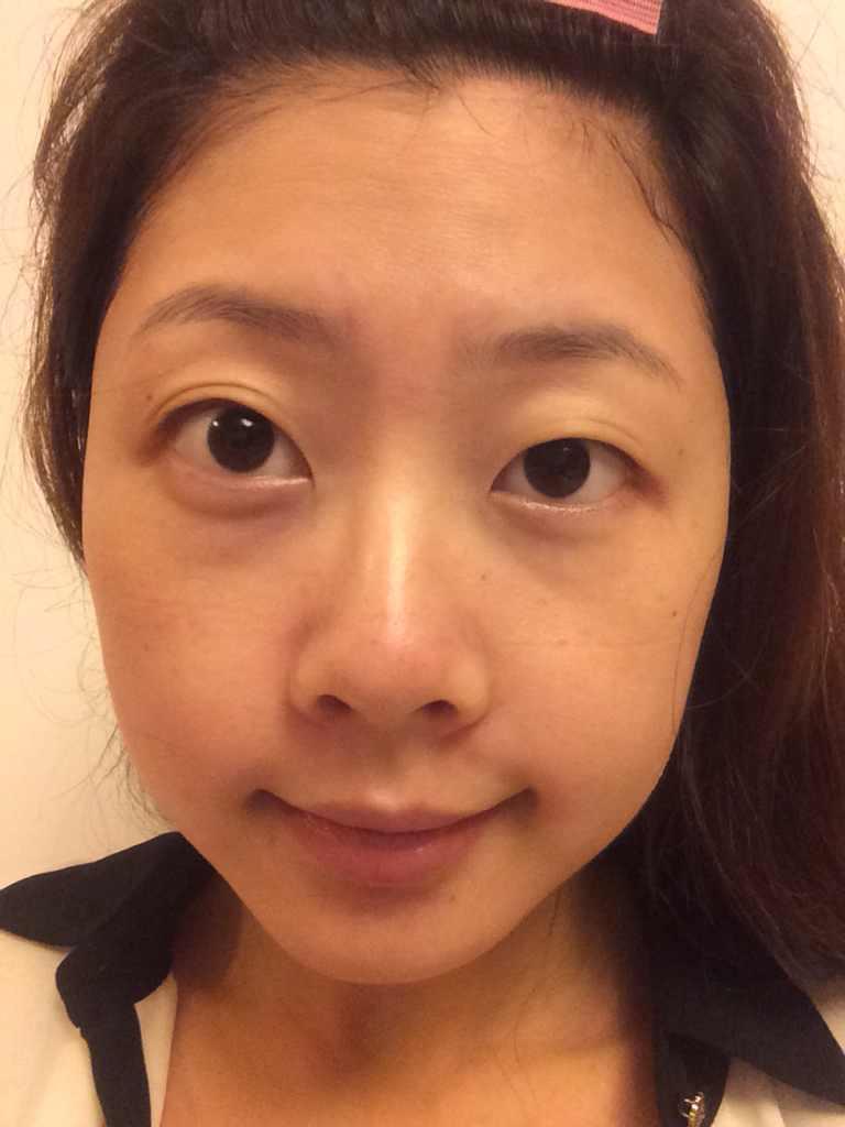 双眼皮术后如何预防疤痕增生?主要想做双眼皮,想要达到素颜也很美的效果。另外,我其他地方需要做吗?