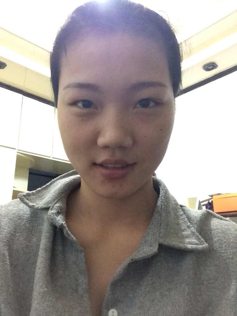 假体隆鼻效果好不好,正面看起来还行,怎么侧面看起来这么的难看?!