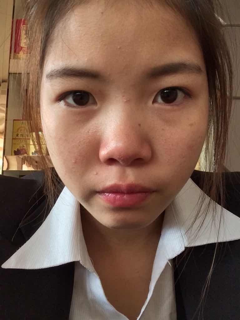 玻尿酸隆鼻能保持多久?大家都说本人长得还不错,可让我苦恼的是,鼻子很塌,特别的拉分,想做注射隆鼻,不知道小效果好不好。
