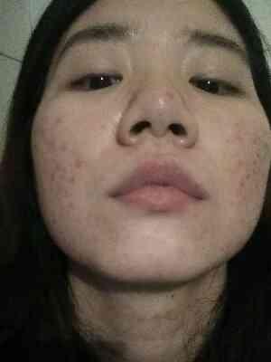 激光治疗痤疮有什么危害,好羡慕拥有好皮肤的人,为什么就偏偏长在脸上呢。