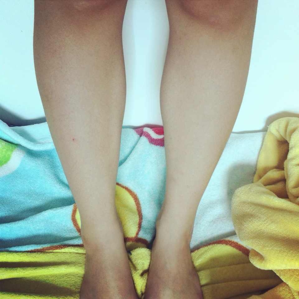 打瘦腿针效果好吗?这小腿肌肉有救吗打瘦腿针还是抽脂还是手术真的困扰阿费用多少良好的解决办法