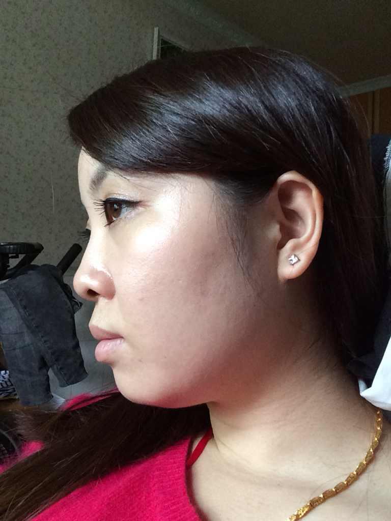 面部吸脂、瘦脸针,哪种适合我呢?脸大真的很悲哀,身上还是很瘦的,真的,怎么破。