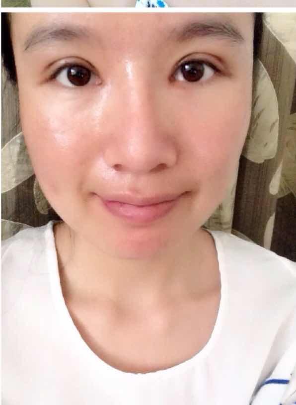 假体植入垫下巴术后护理需要做哪些?没有下巴丑爆了,脸上的皮肤也比较松弛,真的很烦。