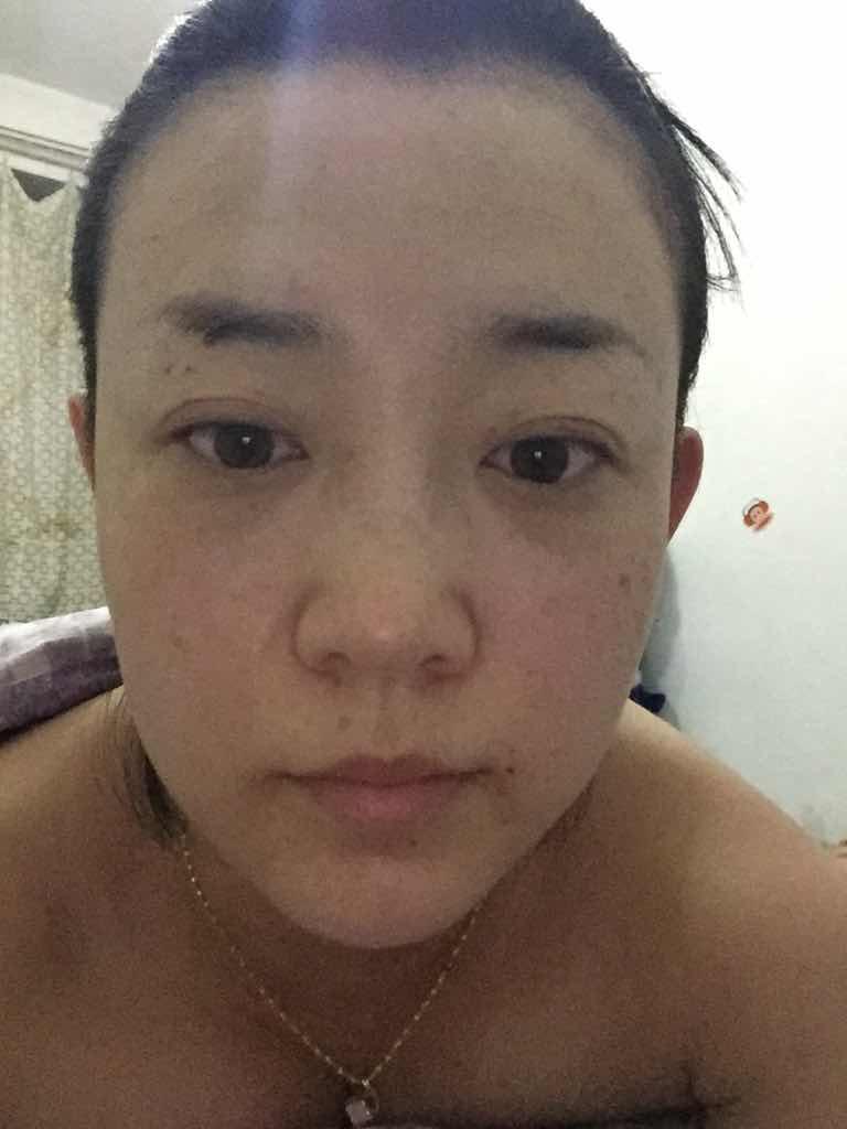 韩式隆鼻术效果好不好?对假体隆鼻还是有点点的排斥,但据说还是假体的效果好,真纠结折磨啊!