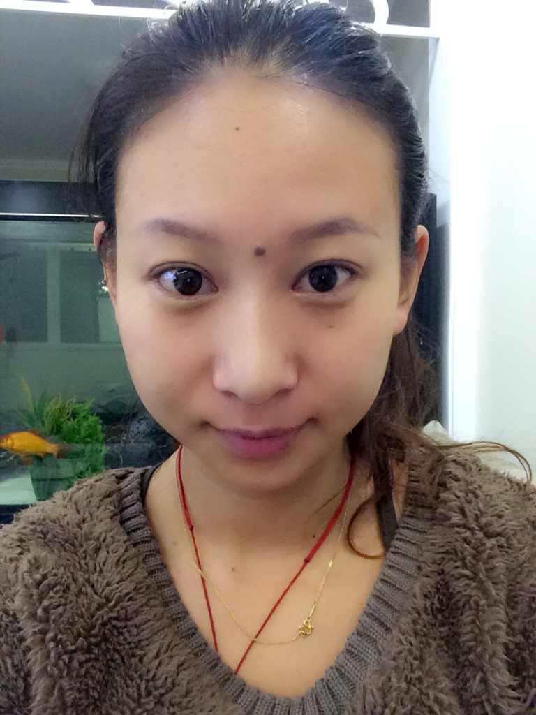 单纯隆鼻和鼻综合整形,差别不只一点点,是这样的吗,我这样的鼻子只能做综合才有救?